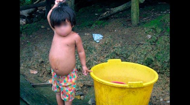 Niño-choco-Desnutricion