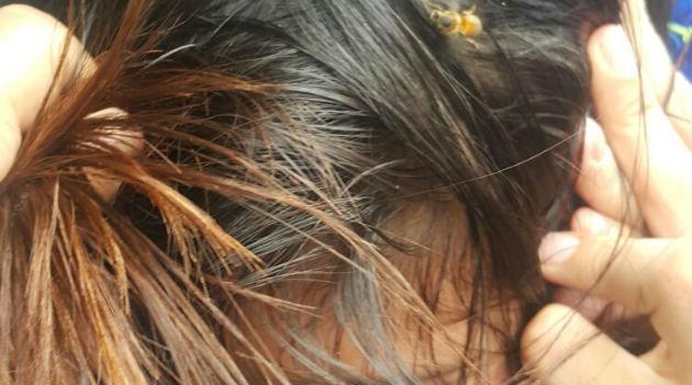 abejas_niños_ataque_bomberos_caldas